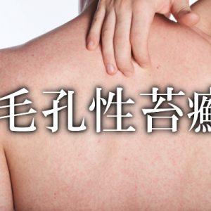 毛孔性苔癬に効果のあるにんにく卵黄